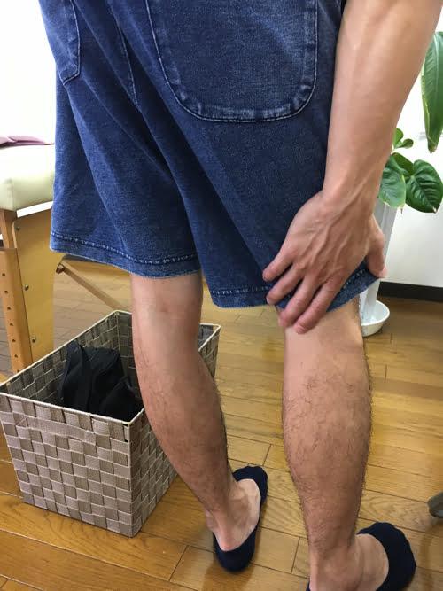 広島_神経ブロック注射が効かないヘルニアの治療5