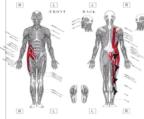広島_神経ブロック注射が効かないヘルニアの治療7