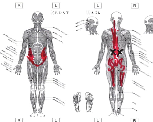 AKA博田法効果なし-慢性腰痛-長く続くぎっくり腰-原因と治療方法6