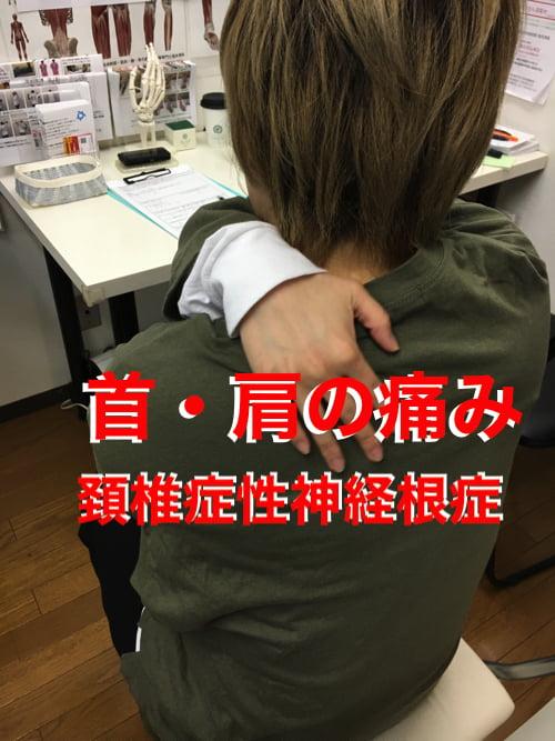 首と肩の痛み治療_頚椎症性神経根症の原因と治療方法1
