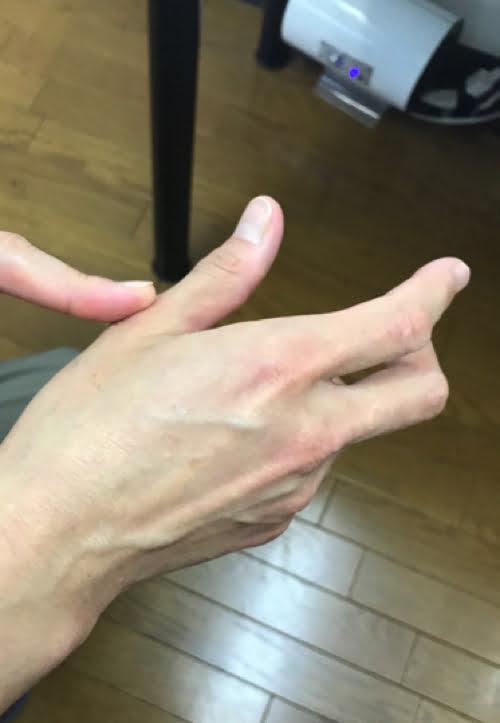 頚椎ヘルニアで指の痺れ原因と治療方法1