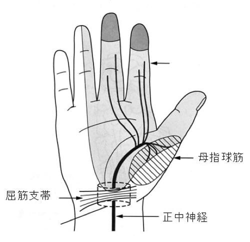 頚椎ヘルニアで指の痺れ原因と治療方法2