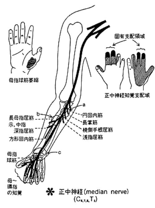 頚椎ヘルニアで指の痺れ原因と治療方法3