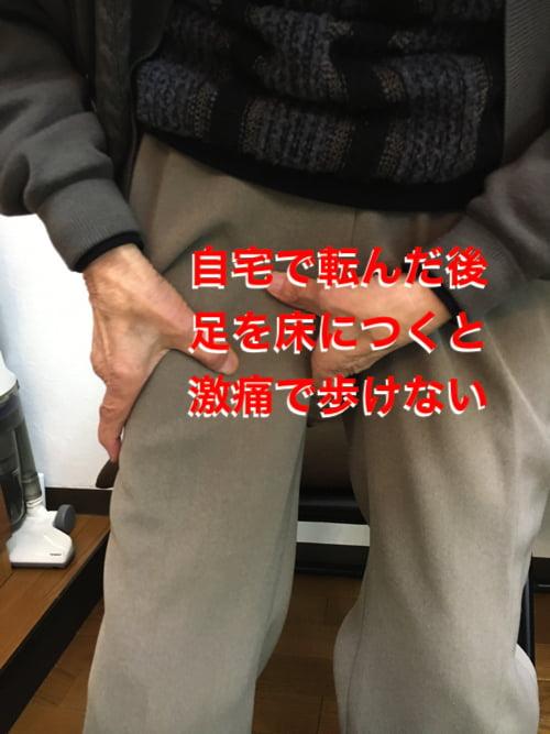 転んだ後足の付根が痛くて歩けなくなったお客様の改善例1