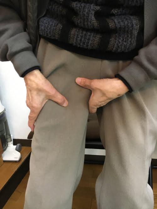 転んだ後足の付根が痛くて歩けなくなったお客様の改善例12