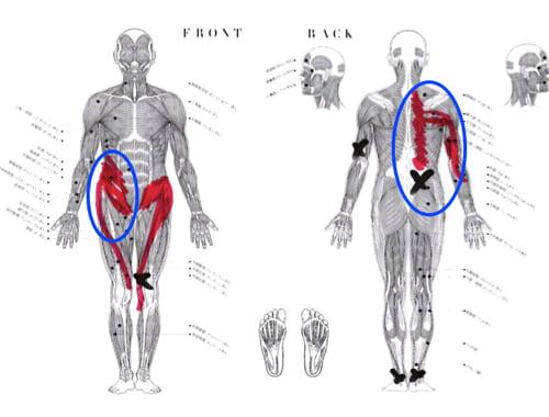 脊椎分離すべり症の腰の痛みの原因と治療方法15