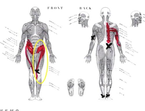 脊椎分離すべり症の腰の痛みの原因と治療方法16