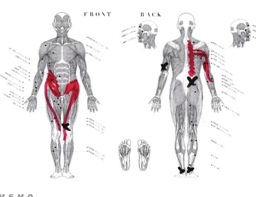 脊椎分離すべり症の腰の痛みの原因と治療方法8