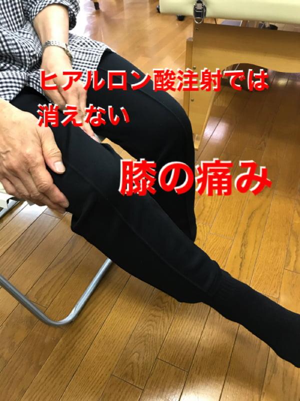膝の痛みの治療_ヒアルロン酸注射が効かない場合の原因と治療法1