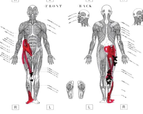 膝の痛みの治療_ヒアルロン酸注射が効かない場合の原因と治療法6