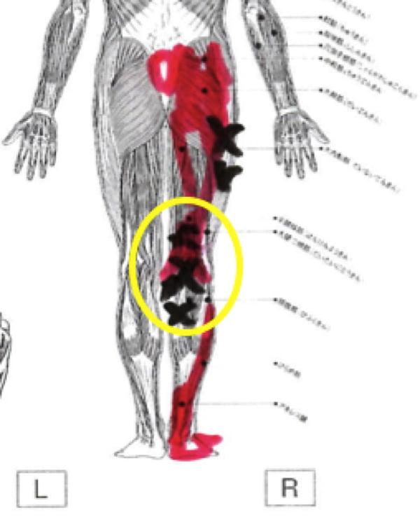 膝の痛みの治療_ヒアルロン酸注射が効かない場合の原因と治療法8