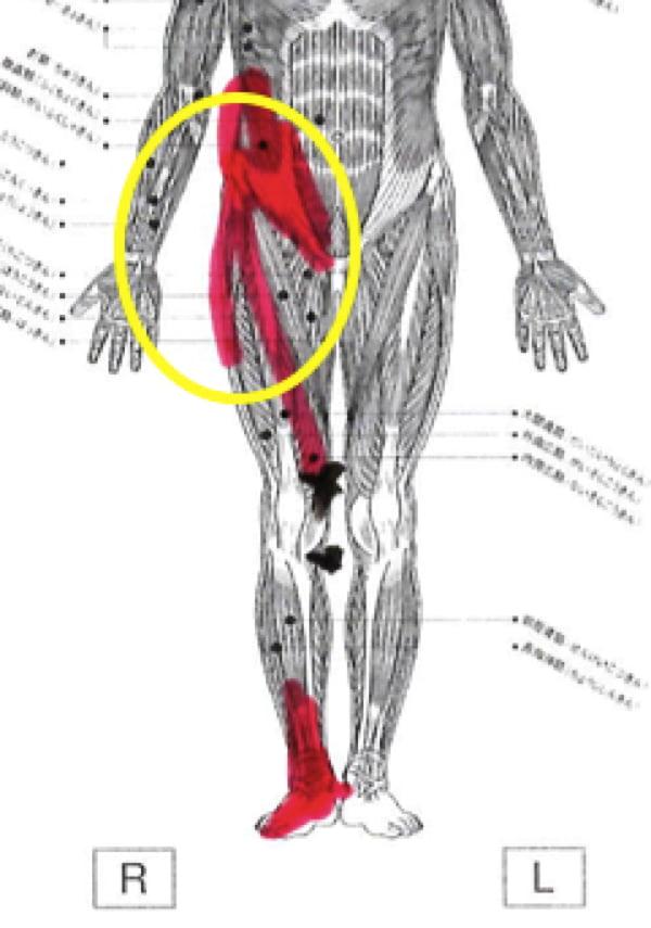 膝の痛みの治療_ヒアルロン酸注射が効かない場合の原因と治療法9