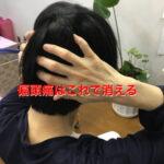 偏頭痛の治し方_頭痛治療方法の解説1