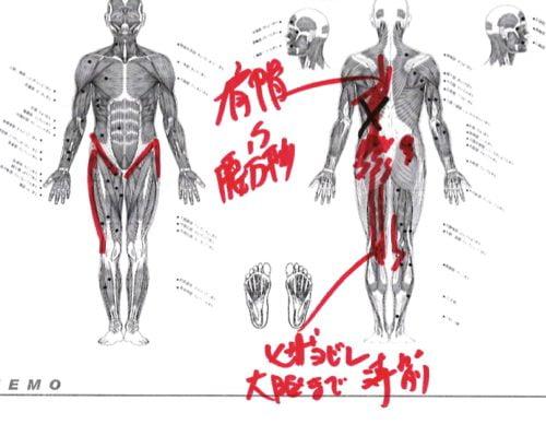 くしゃみで「ぎっくり腰」になった際の治療-広島で腰痛-ぎっくり腰の治療で有名な整体広島眞田流の実例8