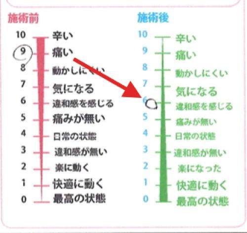 だんだん腰の痛みが強くなり歩くのも辛い状態になった_広島の腰痛治療で有名な整体院6
