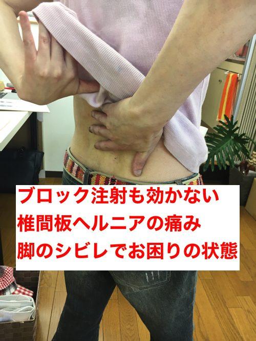 ブロック注射が効かない椎間板ヘルニアの治療