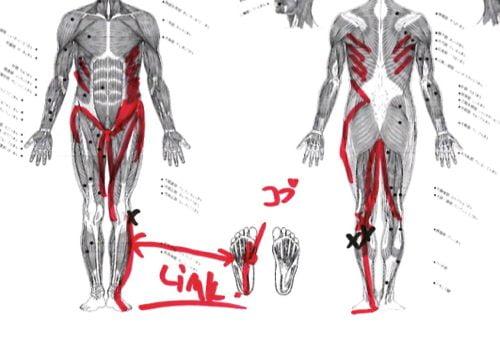 ヘルニアは誤診か-ヘルニア手術失敗か-ヘルニア手術で歩けなくなった女性の回復施術12