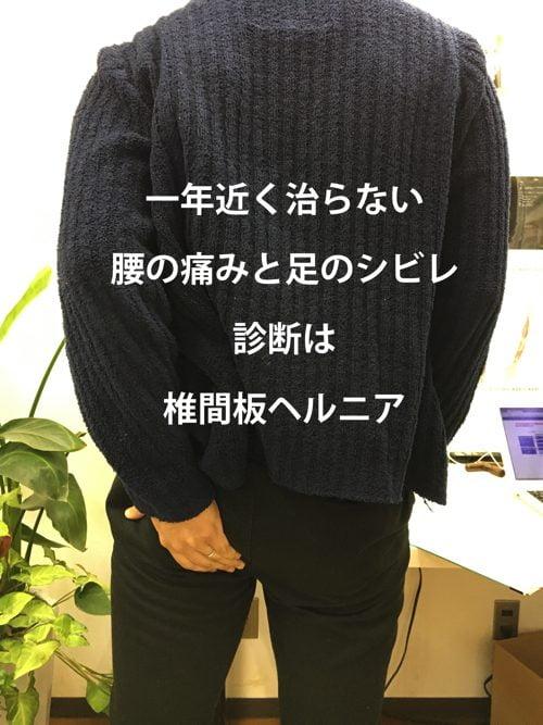 一年近く治らなかった椎間板ヘルニアの治療-広島で椎間板ヘルニアの治療なら整体広島眞田流-治った例1