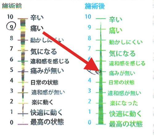 一年近く治らなかった椎間板ヘルニアの治療-広島で椎間板ヘルニアの治療なら整体広島眞田流-治った例3