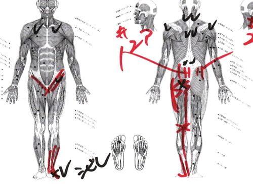 一年近く治らなかった椎間板ヘルニアの治療-広島で椎間板ヘルニアの治療なら整体広島眞田流-治った例5
