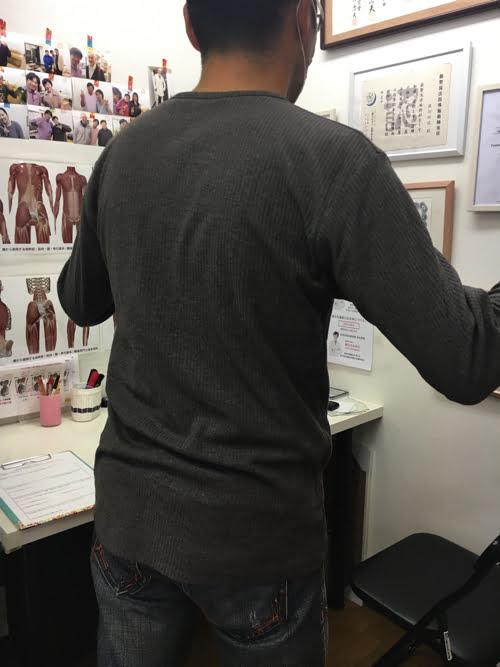 坐骨神経痛でヘルニアの疑い_腰の痛みで前かがみが出来ない症状の原因と治療方法