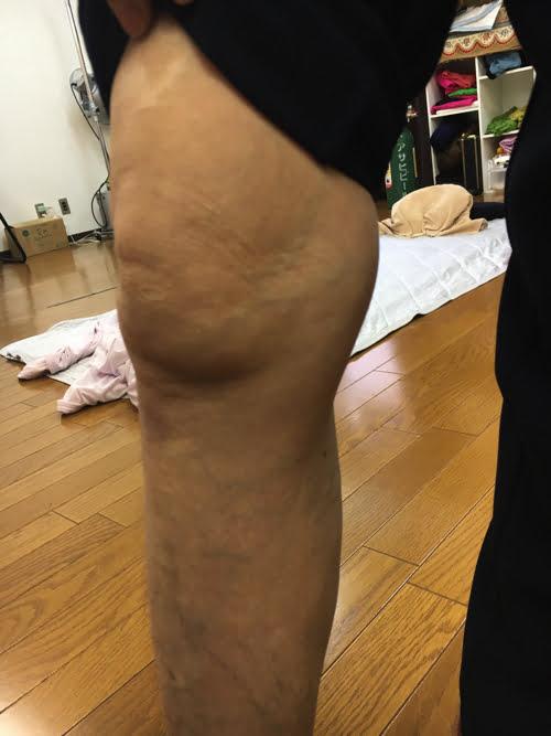 変形性ひざ関節症_膝の痛み_膝に水が溜まる-原因-治療方法_広島の整体院6