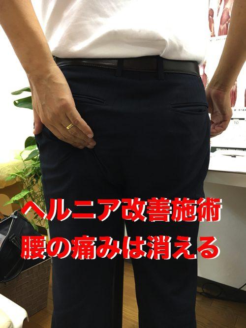 広島で椎間板ヘルニアの治療で有名な整体院の記録-腰の痛みが消えて治った例1
