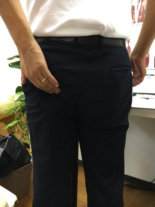 広島で椎間板ヘルニアの治療で有名な整体院の記録-腰の痛みが消えて治った例2