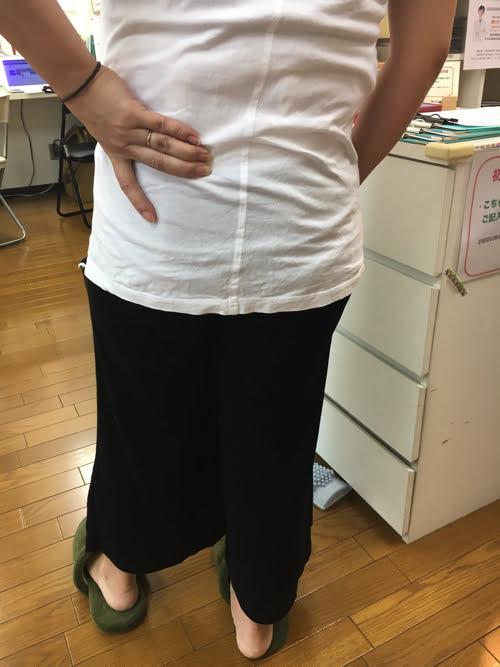 整形外科ではヘルニアと診断された産後腰痛_ブロック注射が効かない腰の痛み