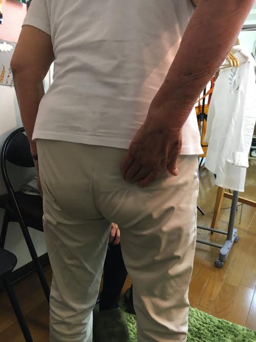 整形外科で治らない脊柱管狭窄症の原因と治療方法-広島の整体院の治った例