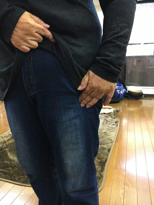 椎間板ヘルニアと脊椎狭窄症の原因と治療方法-広島で椎間板ヘルニア治療で有名な整体院の記録1