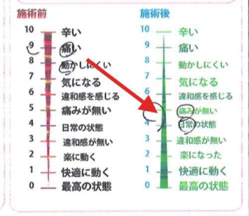 椎間板ヘルニアと脊椎狭窄症の原因と治療方法-広島で椎間板ヘルニア治療で有名な整体院の記録4
