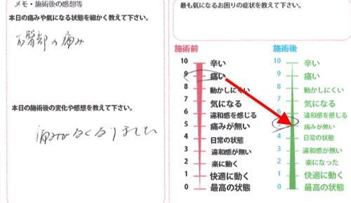 椎間板ヘルニアの治療方法-広島の腰痛専門-整体院の治った例2