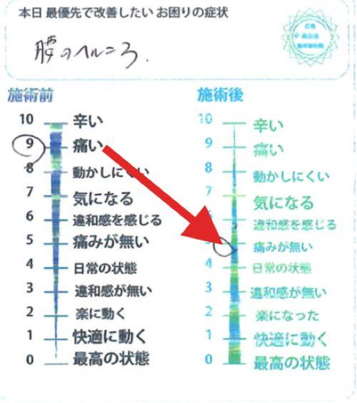 治らないヘルニアの原因と治療方法-広島の腰痛専門士の整体院の治った実例1