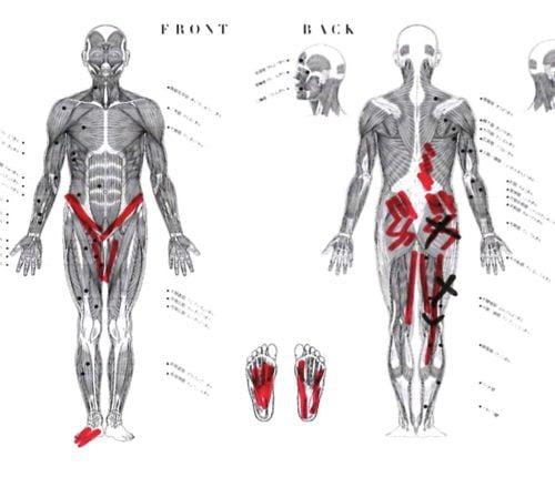 治らないヘルニアの原因と治療方法-広島の腰痛専門士の整体院の治った実例3
