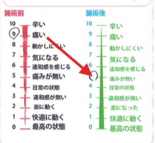 脊椎狭窄症の腰の痛みと足のシビレの原因と治療方法_広島の有名な腰痛専門の整体院の治った霊7