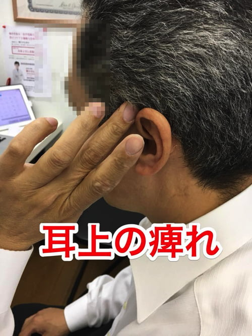 顎や顔_身体ののシビレの原因と治療方法