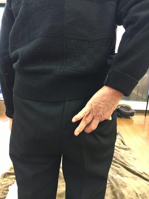 1椎間板ヘルニアの治療方法-広島の腰痛専門-整体院の治った例