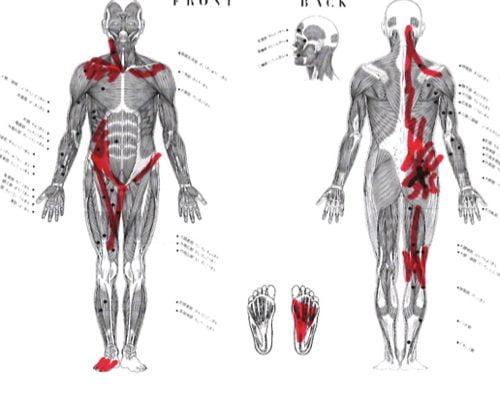 11椎間板ヘルニアの治療方法-広島の腰痛専門-整体院の治った例