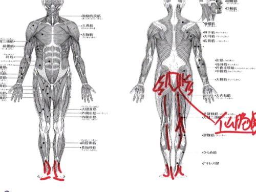 12椎間板ヘルニアの治療方法-広島の腰痛専門-整体院の治った例