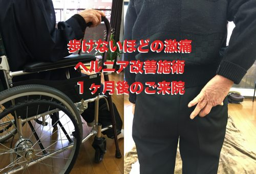13椎間板ヘルニアの治療方法-広島の腰痛専門-整体院の治った例